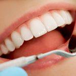 Benefits of Seeing a Teeth Whitening Dentist in La Mesa, CA