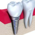 Affordable Dental Implants in La Mesa Area